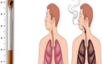 أضرار التدخين على الجسم بالتفصيل؛ 5 أبرزها العقم عند الرجال